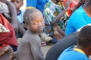 ER-Canada-Hungry-Malawi-Kid